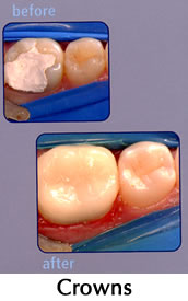 CEREC Crowns - before/after