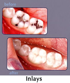 CEREC Inlays - before/after