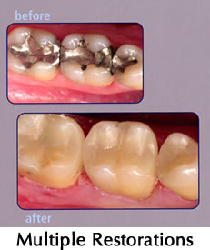 Multiple Restorations - before/after