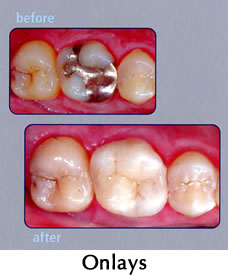 CEREC Onlays - before/after