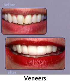 Veneers - before/after